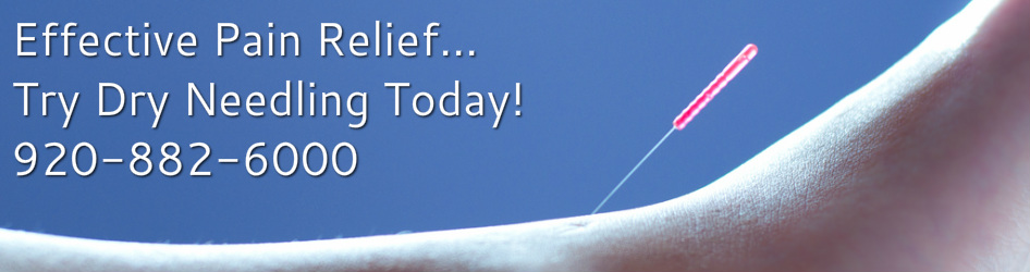 Dry Needling Pinnacle Therapy Solutions